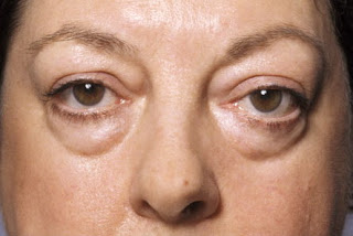 Eye bag surgery
