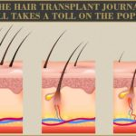 The Hair Transplant Journal