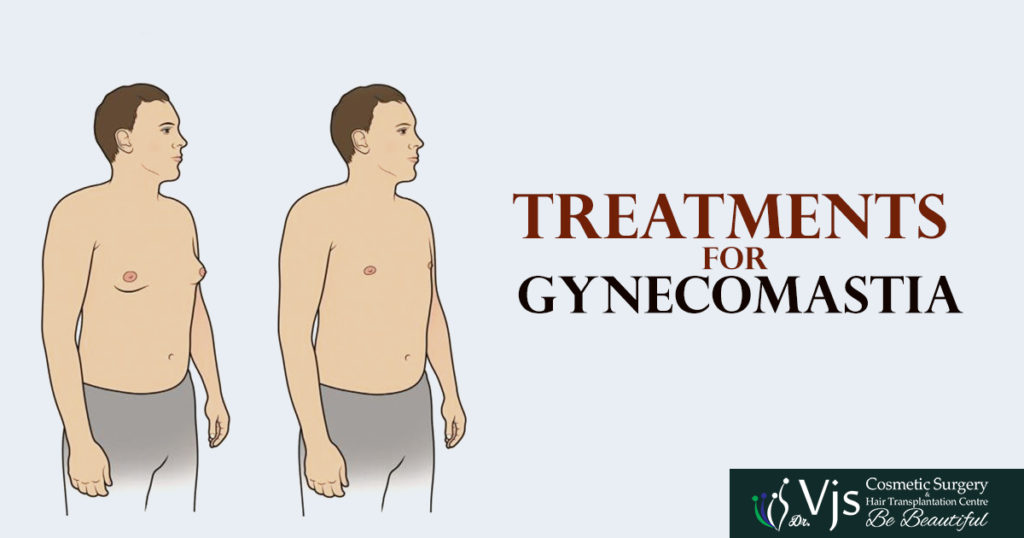 What is the bestTREATMENTS FOR GYNECOMASTIA