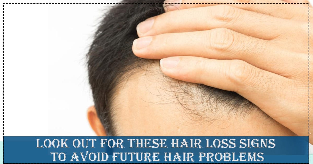 Look Out for These HAir Loss Signs To Avoid Future hair problems