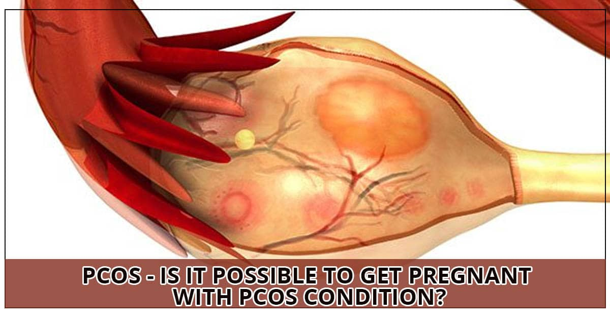 PCOS - Is it possible to get pregnant with PCOS Condition