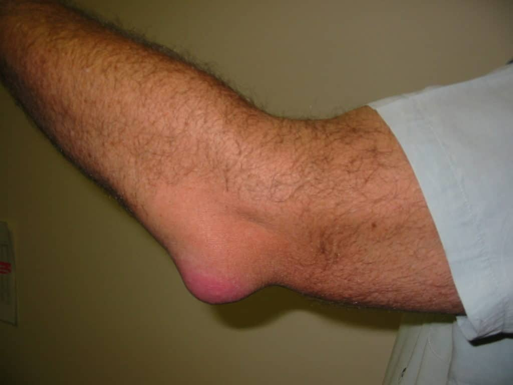 Bursitis- Hip Pain Causes and Treatments