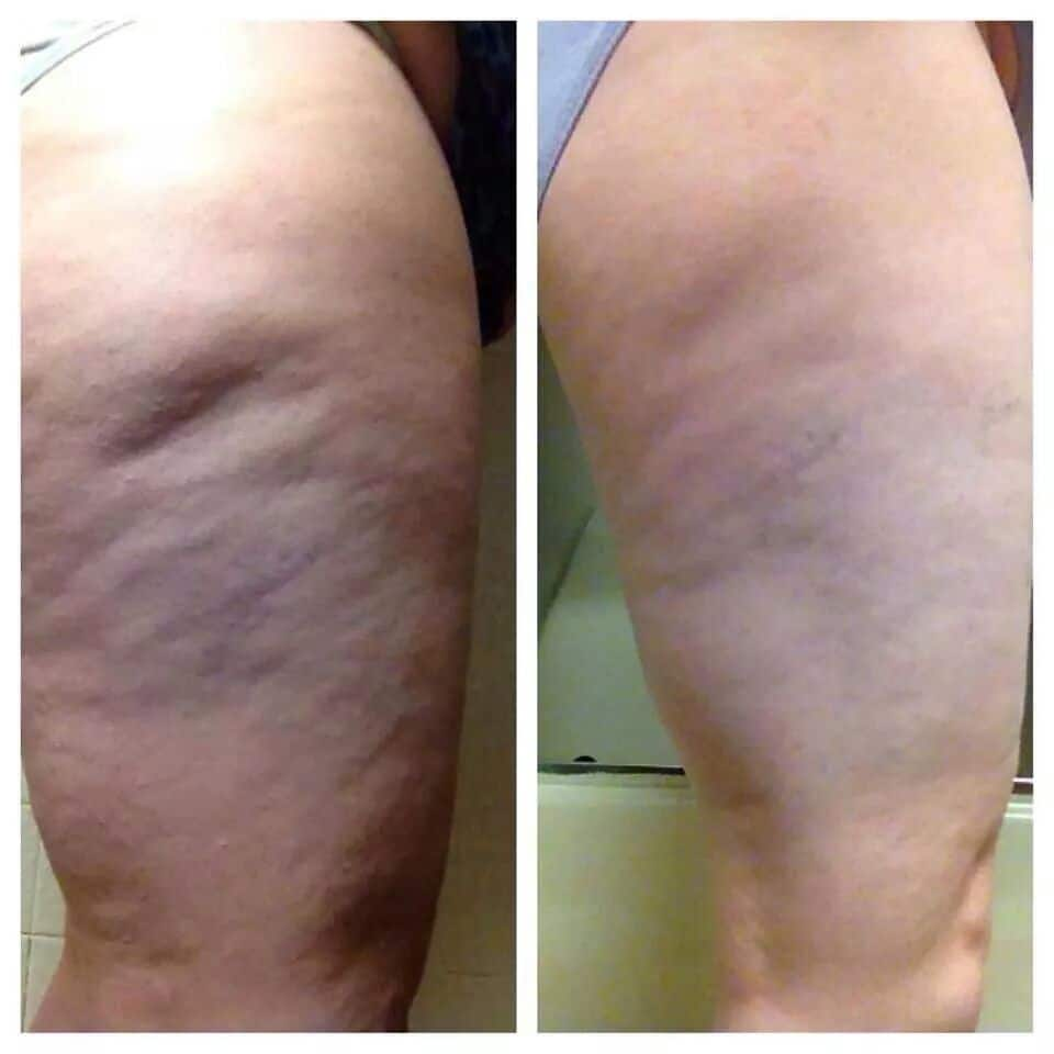 Cellulite Naturally